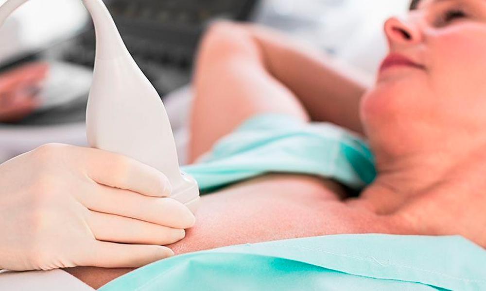 biopsia-de-mama